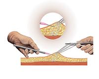 Cirurgia de correção